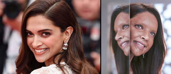 Deepika Padukone acid attack look